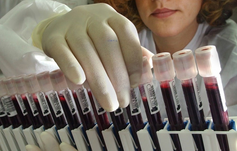 Leila Kohbodi and Melvin Narciso prepare viles of blood to be screened for the West Nile Virus at the American Red Cross National Testing Laboratory in San Diego on July 20, 2004, in San Diego, CA. The samples are from donors who gave blood at a blood bank. The San Diego lab has already prepared additional testing space in case the virus spreads to an epidemic scale. TNS Photo