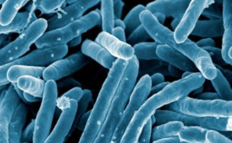 Tuberculosis bacteria under a scanning electron microscope   Courtesy of Flickr
