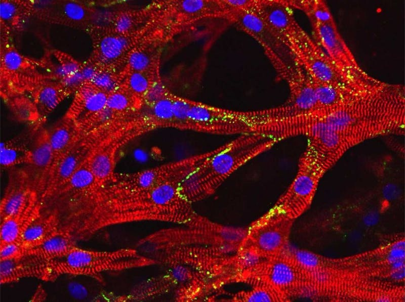 Human heart muscle cells in artificial heart tissue created by researchers at Duke University. Photo courtesy of Nenad Bursac.