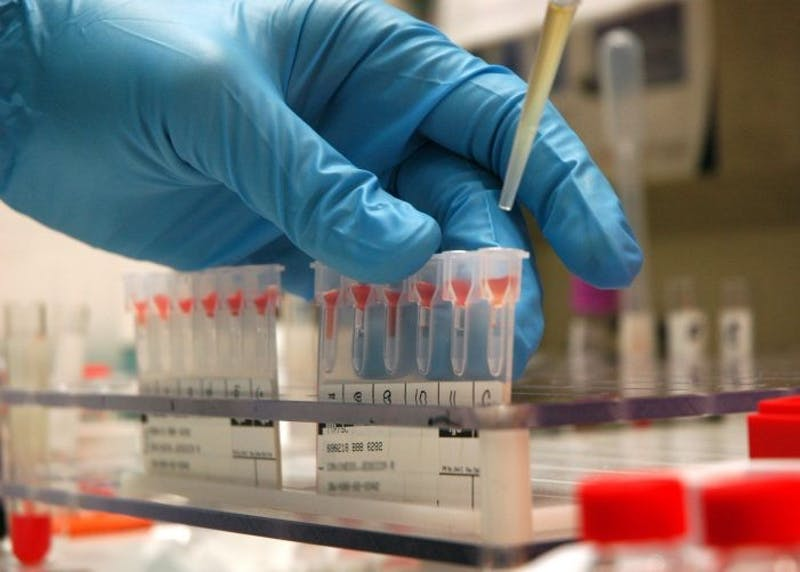 HELPERSD/CC BY-SA 3.0 CancerSEEK is a new blood test developed by a Hopkins research team to screen for cancer.