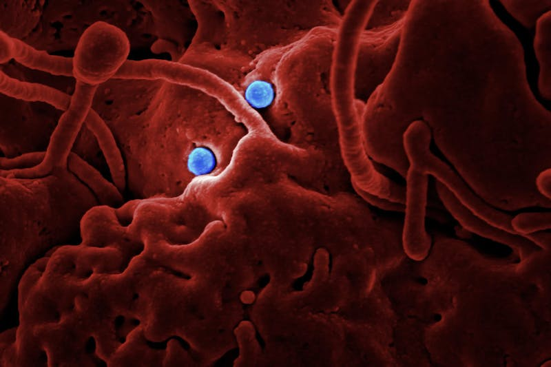 Produced by the National Institute of Allergy and Infectious Diseases (NIAID), in collaboration with Colorado State University, this highly magnified, digitally colorized scanning electron microscopic (SEM) image, reveals ultrastructural details at the site of interaction of two spherical shaped, Middle East respiratory syndrome coronavirus (MERS-CoV) viral particles, colorized blue, that were on the surface of a camel epithelial cell, colorized red.