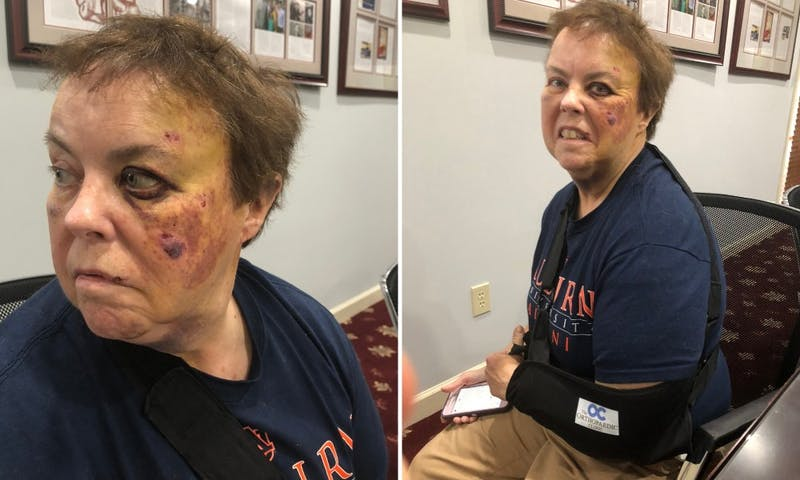 An Auburn student, 20-year-old Jess Erwin Ralston, from Auburn, has been charged with third-degree assault, police said, after attacking a 58-year-old female Lyft driver, Lennie Hartzog (above), in the 200 block of West Longleaf Drive. (via Trip Watson)