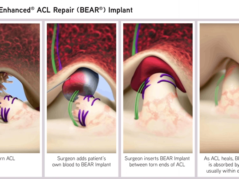 BEAR_Implant_Process