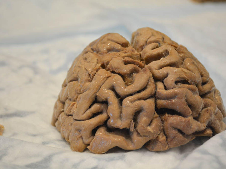 Ganga_Brain-Week-RI_Kaitlyn-Lew