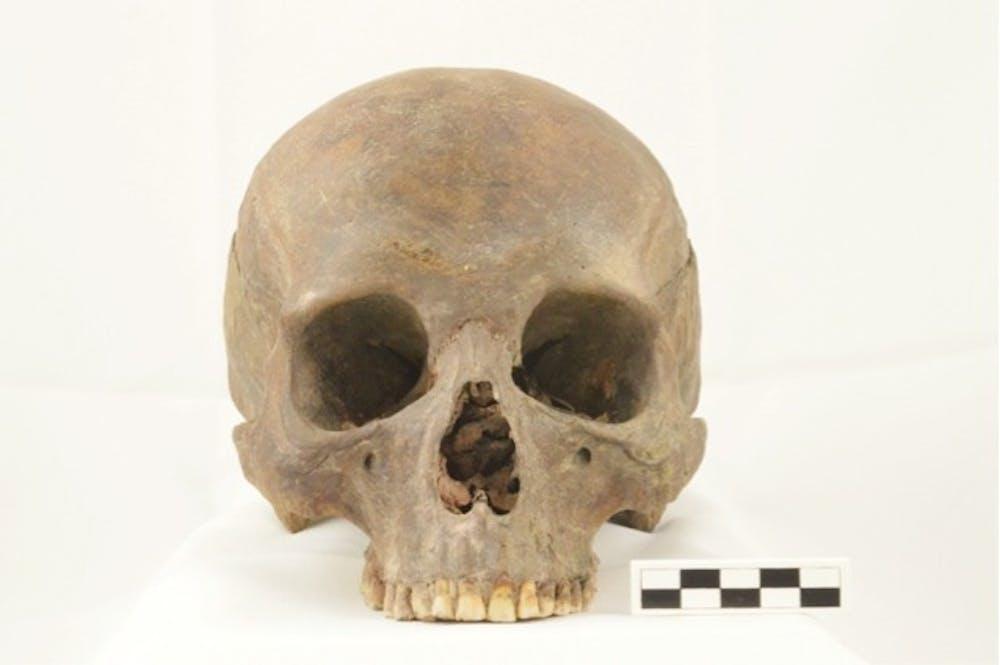 bones_4