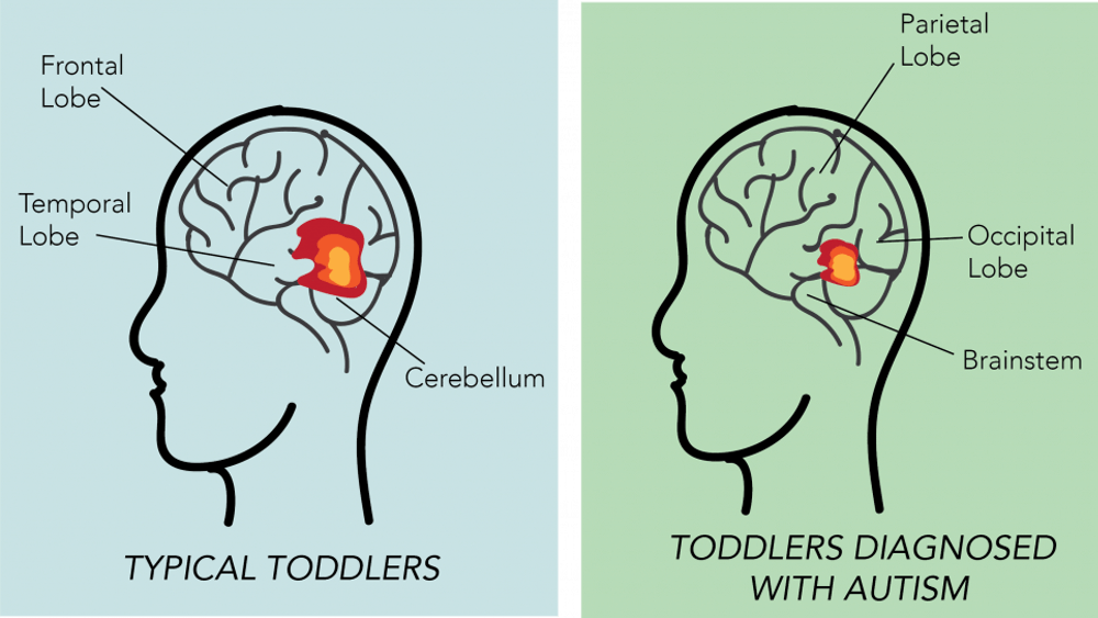 Both boys and girls diagnosed with autism show underdeveloped neural activity in certain areas of the brain.