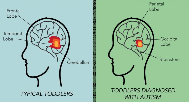 U.Va. researchers analyze disparities in autism diagnoses