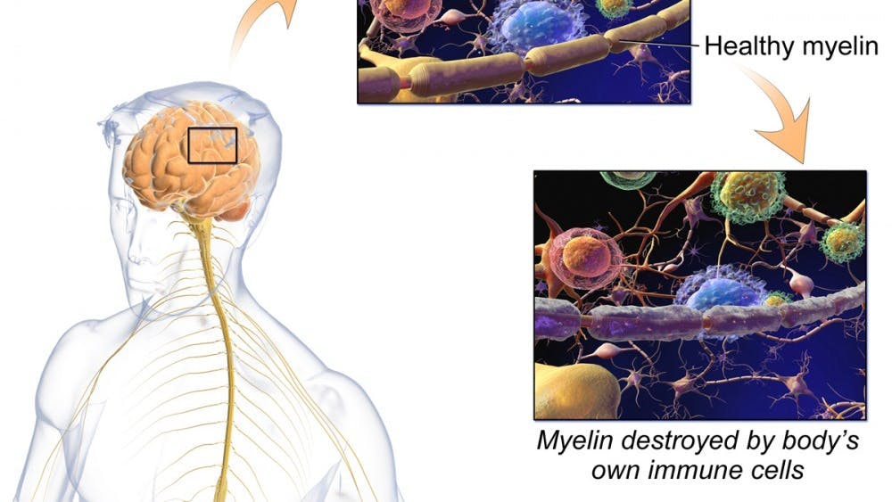 Ocrevus has become the first drug to receive FDA approval for the treatment ofprimary progressive Multiple Sclerosis, an inflammatory disease of the central nervous system.