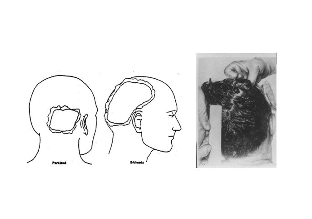 three_views_of_the_head_wound