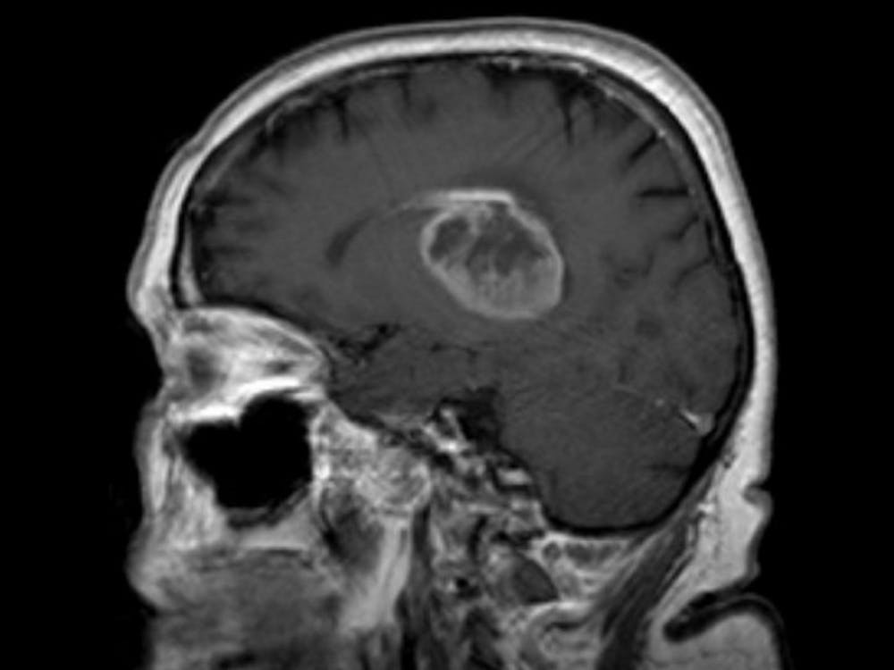 An example of glioblastoma   Courtesy of Wikimedia Commons