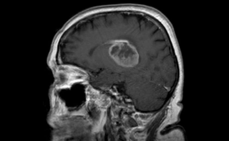 An example of glioblastoma | Courtesy of Wikimedia Commons