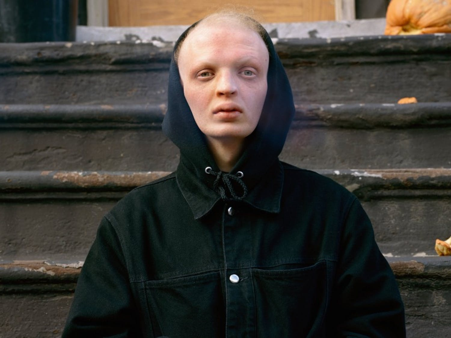 Jacob Moss spent last summer traveling across American and photographing individuals, like the man pictured above, with ectodermal dysplasia, a rare genetic condition he also has.