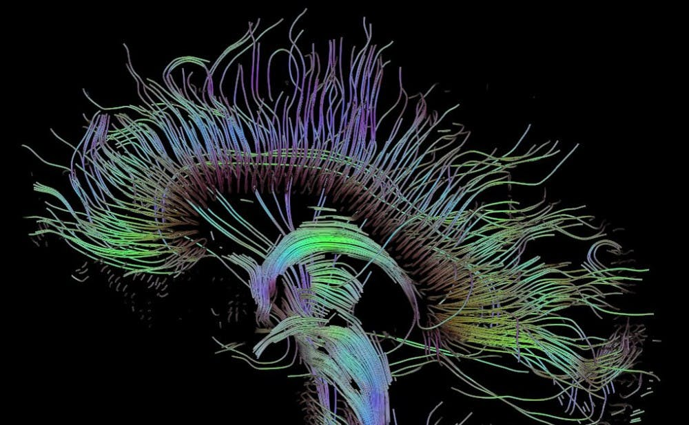 <p>The researchers said their findings cast doubt on the myth that creative people are more right-brained.</p>