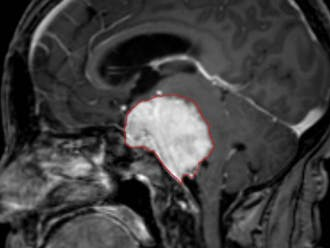 """Ravi Bellamkonda's team created a tool that the FDA has now designated a """"breakthrough device."""" It helps surgeons extract brain tumors. 