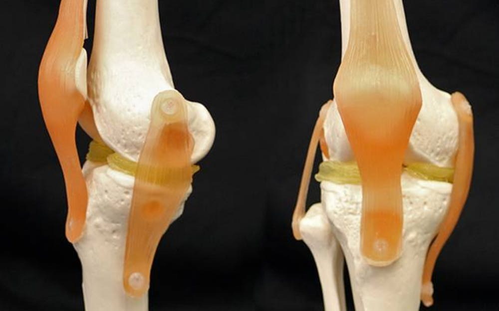 <p>Benjamin Wiley's lab discovered a way to 3D print knee&nbsp;cartilage replacements.</p>