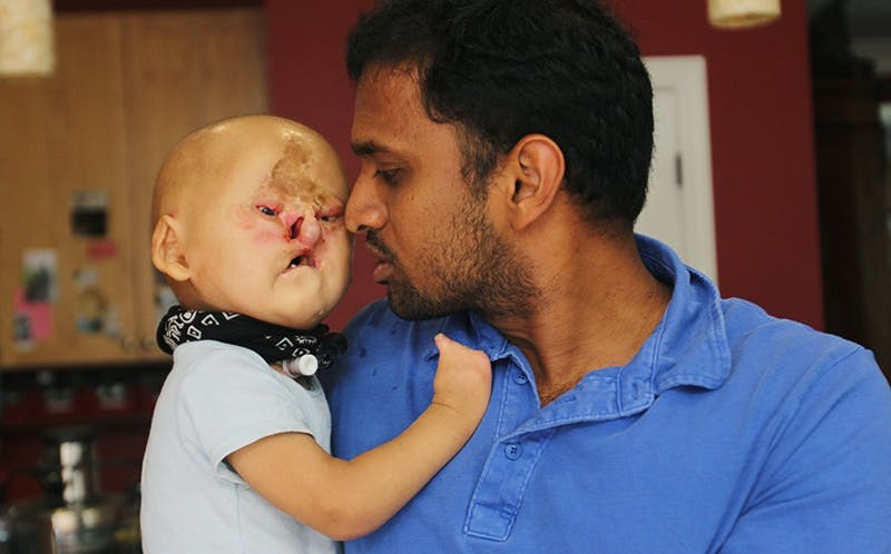 Raja and Jessica Paulraj, Adam's adopted parents, brought Adam from India to receive the surgeries.