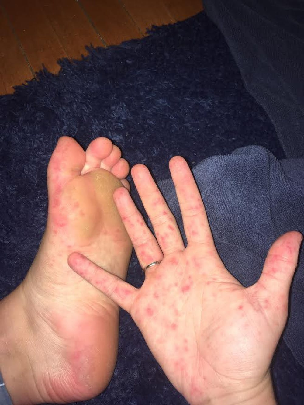 Hand, foot and mouth disease breaks out in first-year dorms
