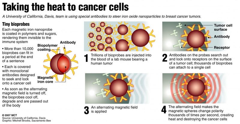 20071112 Breast tumors