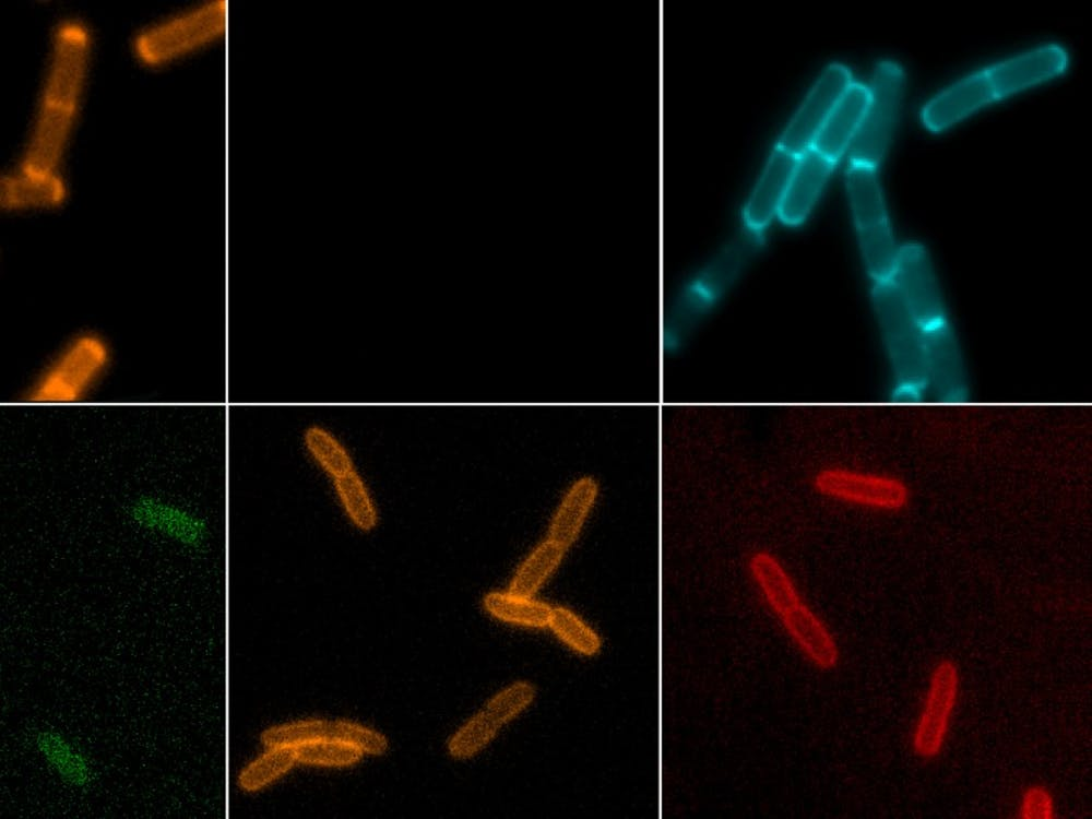 IU researchers from the Department of Chemistry have made discoveries about bacteria that will advance the search for new antibacterial medicine. The researchers are using new chemical probes to observe cells in a more active way.