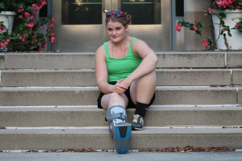 Deborah Alix, a senior majoring in theatre and drama, rests her fractured foot Aug. 28 on the steps outside the Neal-Marshall Black Culture Center. Her doctor believes she should be out of the boot by October.