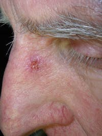 Public Domain Chemicals produced by bacteria can protect people from skin cancer.