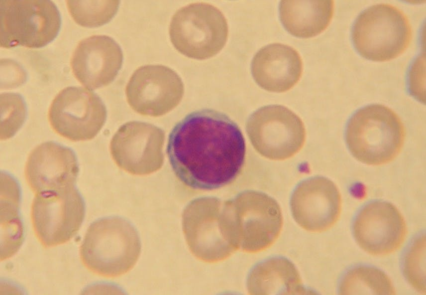 B9_Lymphocyte