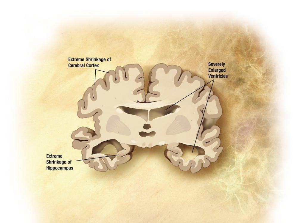 alzheimers-disease-brain-severe