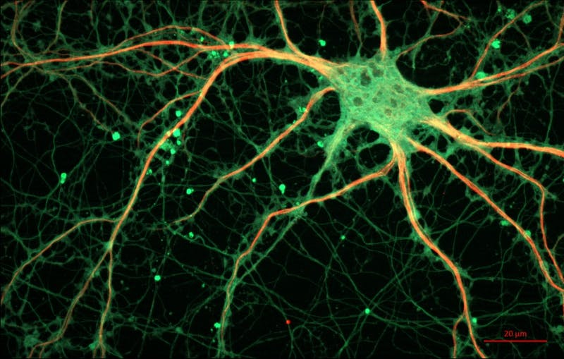 "PUBLIC DOMAIN Researchers at the Allen Institute have discovered new human neurons called ""roseship cells."""