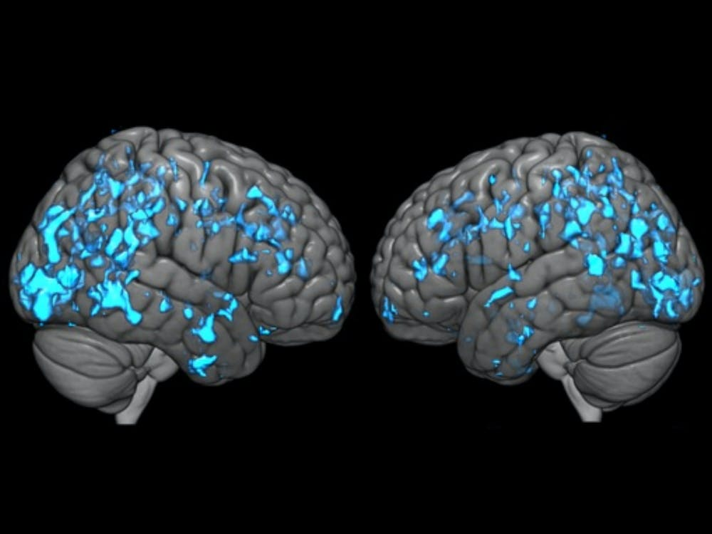 COURTESY OF GWENN SMITH The blue areas are the regions of Parkinson's disease patients after treatment with deep brain stimulation, where an increase in dopamine is associated with an increase in glucose metabolism.