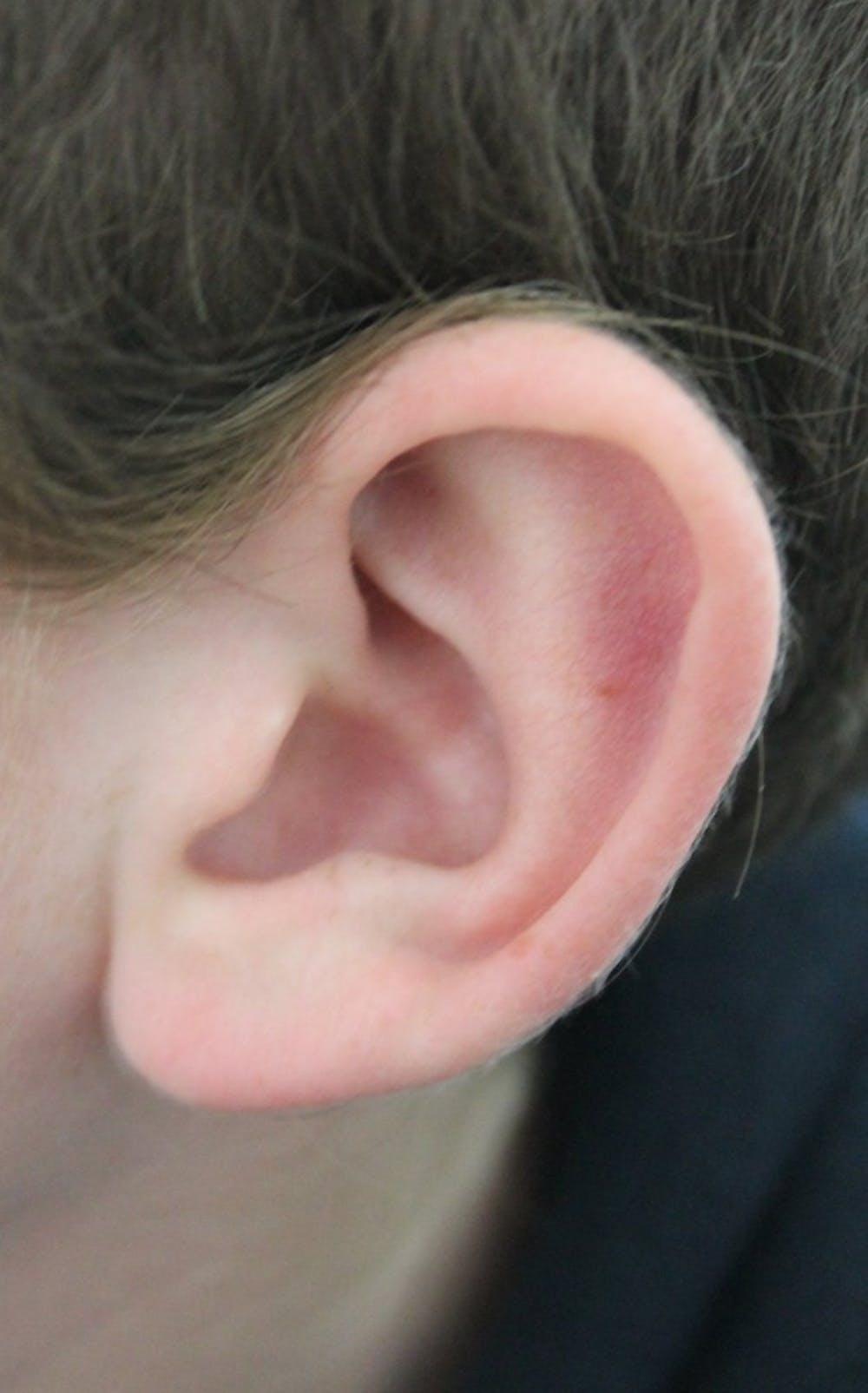 B9_ear
